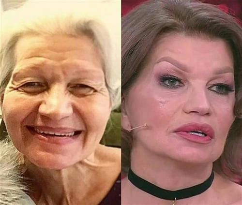 Помолодевшая жена Гогена Солнцева (фото до и после пластики)