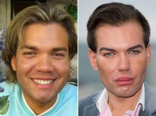 Живой Кен Родриго Алвес до и после пластики (фото)