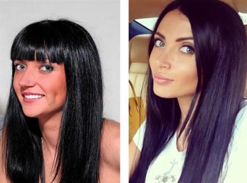 Марина Майер фото до и после операции пластики